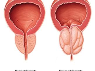 Cancer de la prostate: Faiblesse et engourdissement