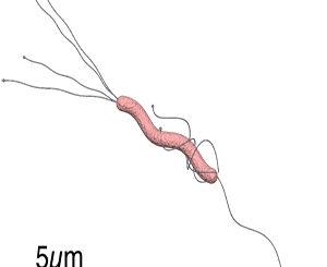 Traitement naturel contre H. pylori: qu'est-ce qui fonctionne?