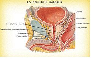 Cancer de la prostate: symptômes, traitement et causes