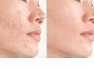13 remèdes maison puissants pour l'acné