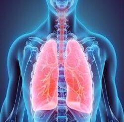 Ce qu'il faut savoir sur le cancer du poumon de stade 3